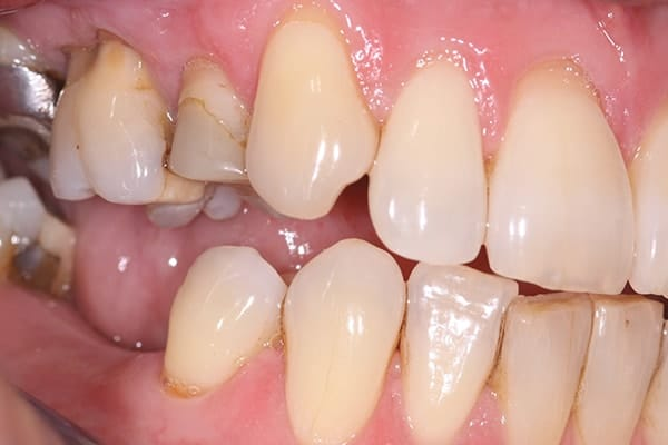 Before and after CEREC treatment in Leicester, Oakdale Dental