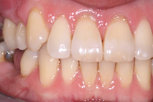 Before and after CEREC replace back teeth treatment in Leicester, Oakdale Dental