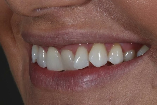 After teeth whitening in leicester