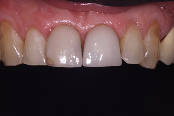 Before and After treatment image