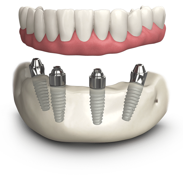all-on-4-dental-implants-leicester-oakdale-dental
