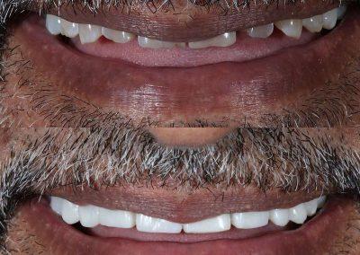 Smile-makeover-oakdale-dental-1