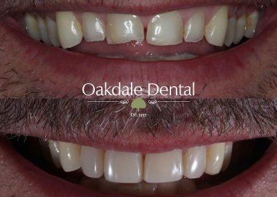 Smile-makeover-oakdale-dental-10