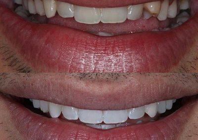 Smile-makeover-oakdale-dental-11