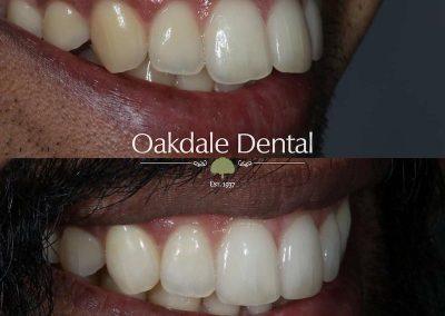 Smile-makeover-oakdale-dental-12