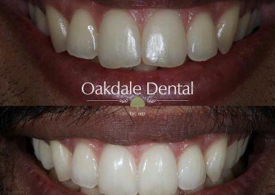 Smile-makeover-oakdale-dental-13