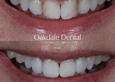 Smile-makeover-oakdale-dental-14