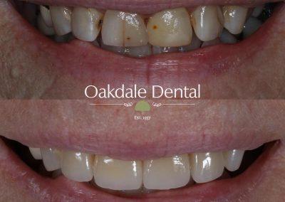 Smile-makeover-oakdale-dental-15