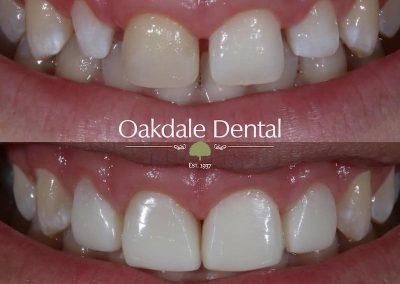 Smile-makeover-oakdale-dental-16