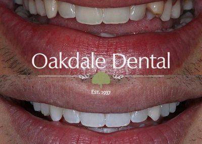 Smile-makeover-oakdale-dental-18