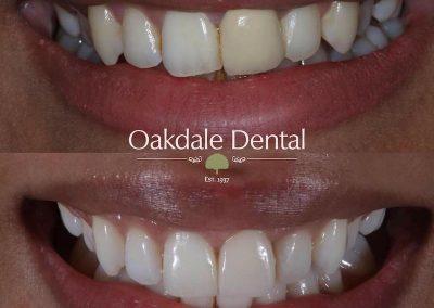 Smile-makeover-oakdale-dental-19