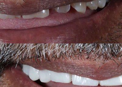 Smile-makeover-oakdale-dental-2