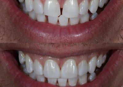 Smile-makeover-oakdale-dental-20