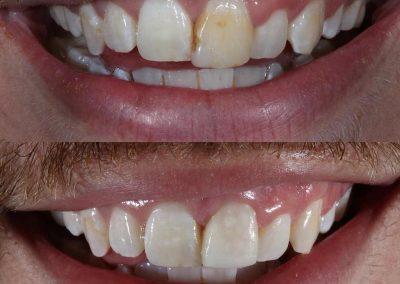 Smile-makeover-oakdale-dental-21
