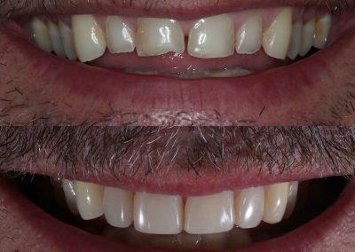 Smile-makeover-oakdale-dental-3