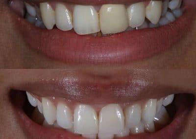 Smile-makeover-oakdale-dental-4