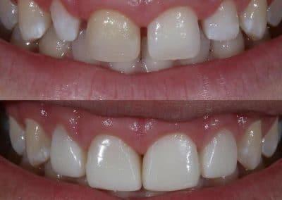 Smile-makeover-oakdale-dental-5
