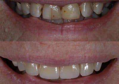 Smile-makeover-oakdale-dental-6