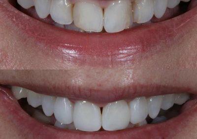Smile-makeover-oakdale-dental-7
