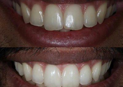 Smile-makeover-oakdale-dental-8