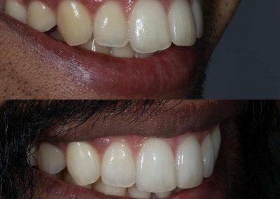 Smile-makeover-oakdale-dental-9