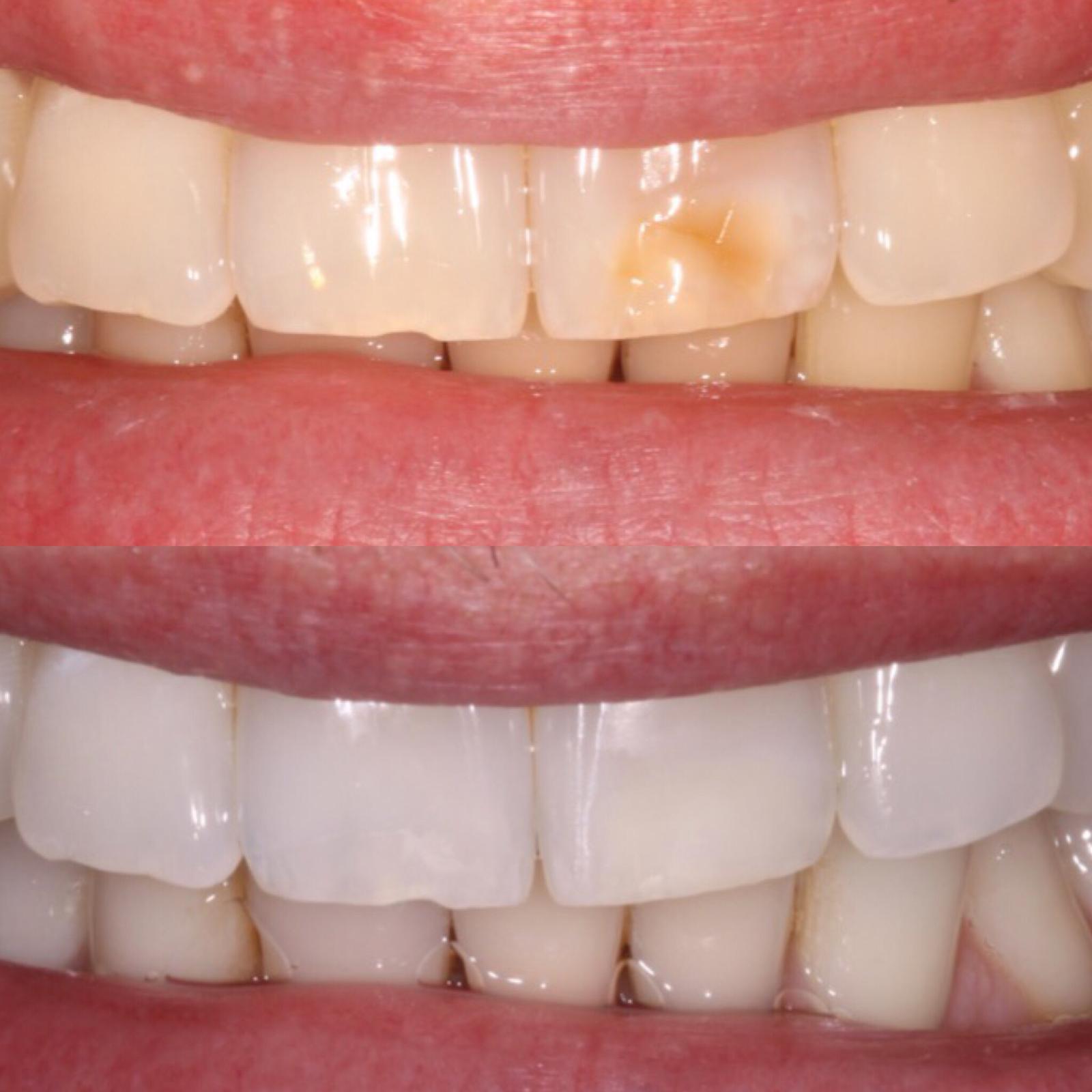 Cosmetic Teeth Bonding
