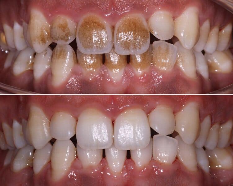 dental hygienist leicester