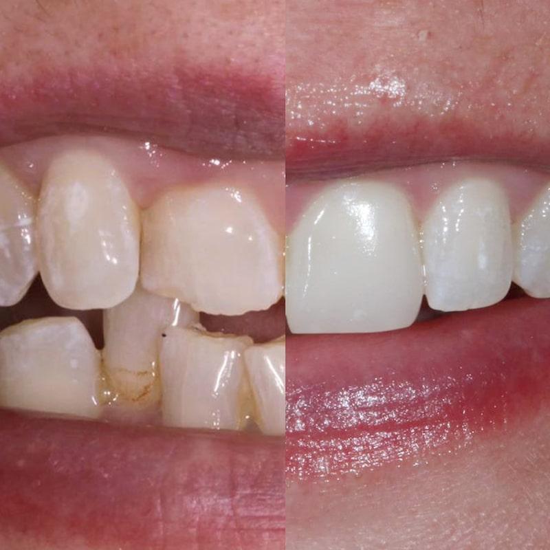 Cosmetic Treatments