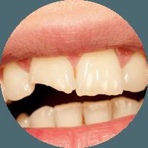 General Treatments