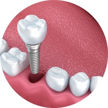 Single Tooth Replacement, Leicester
